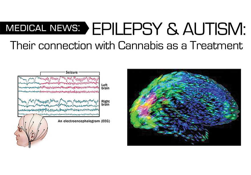Epilepsy and Autism | How Cannabis Helps with Epilepsy and Autism ...