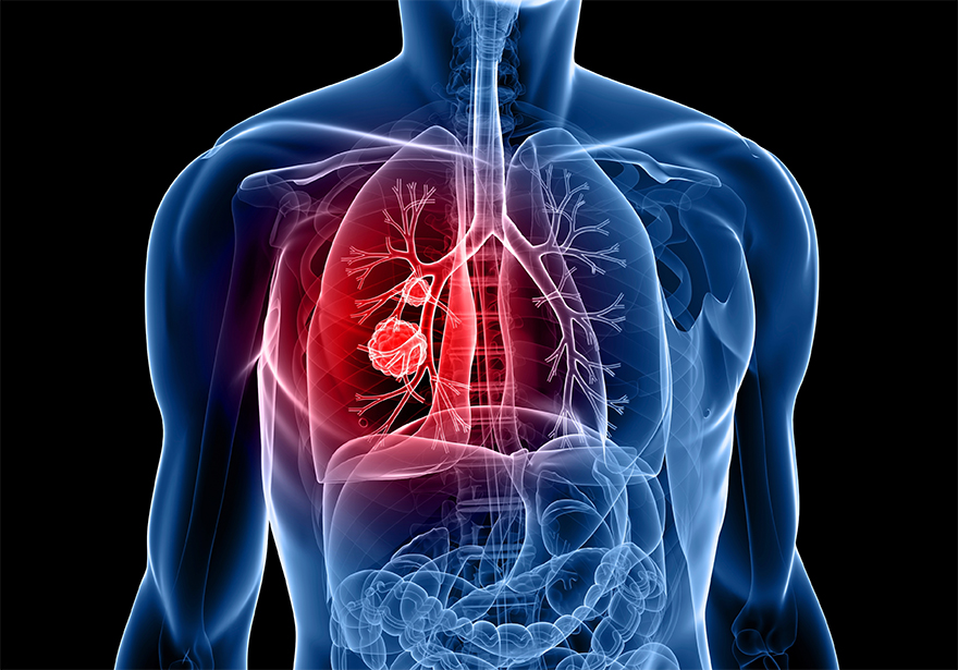 Patient Testimonial: Cannabis Killed My Stage IV Lung Cancer