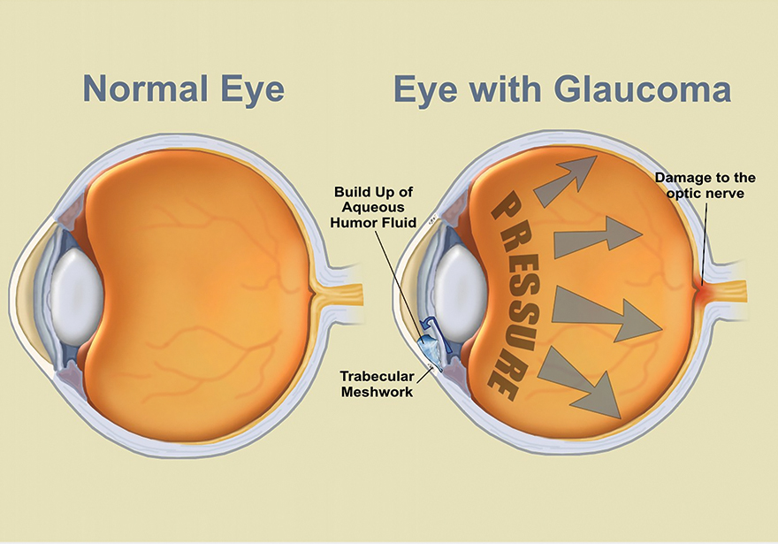 GLAUCOMA AND CANNABIS
