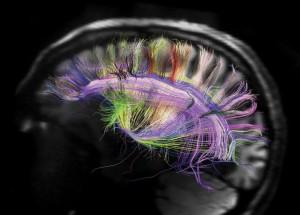 thc-brain