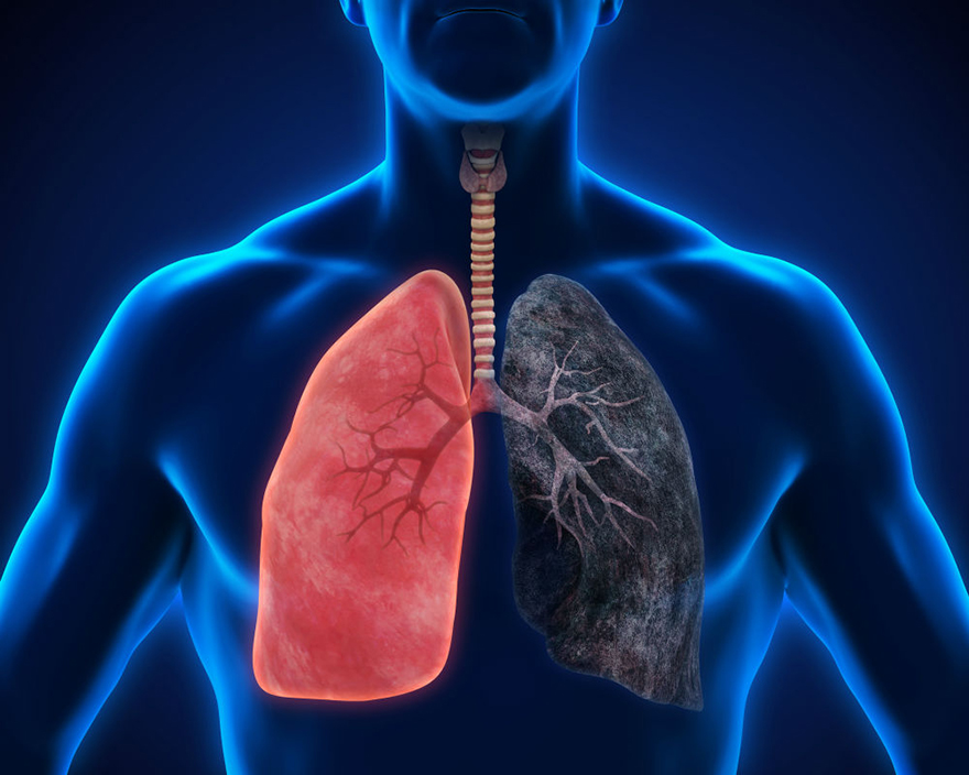 Marijuana Myth Busted - Smoking cannabis can cause lung cancer - Edibles Magazine Article